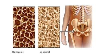 Ostéopénie