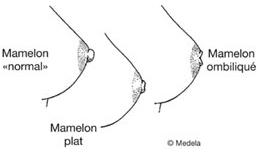 Mamelon inversé